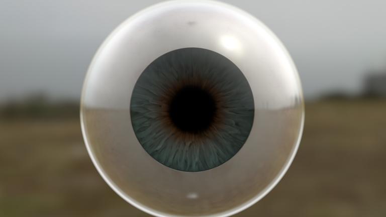 Steven Dickie, A Hypertrophied Eye
